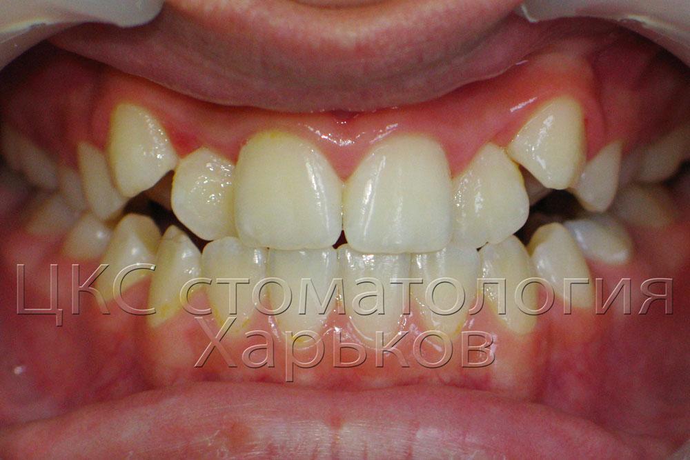 Неровные зубы до лечения брекетами