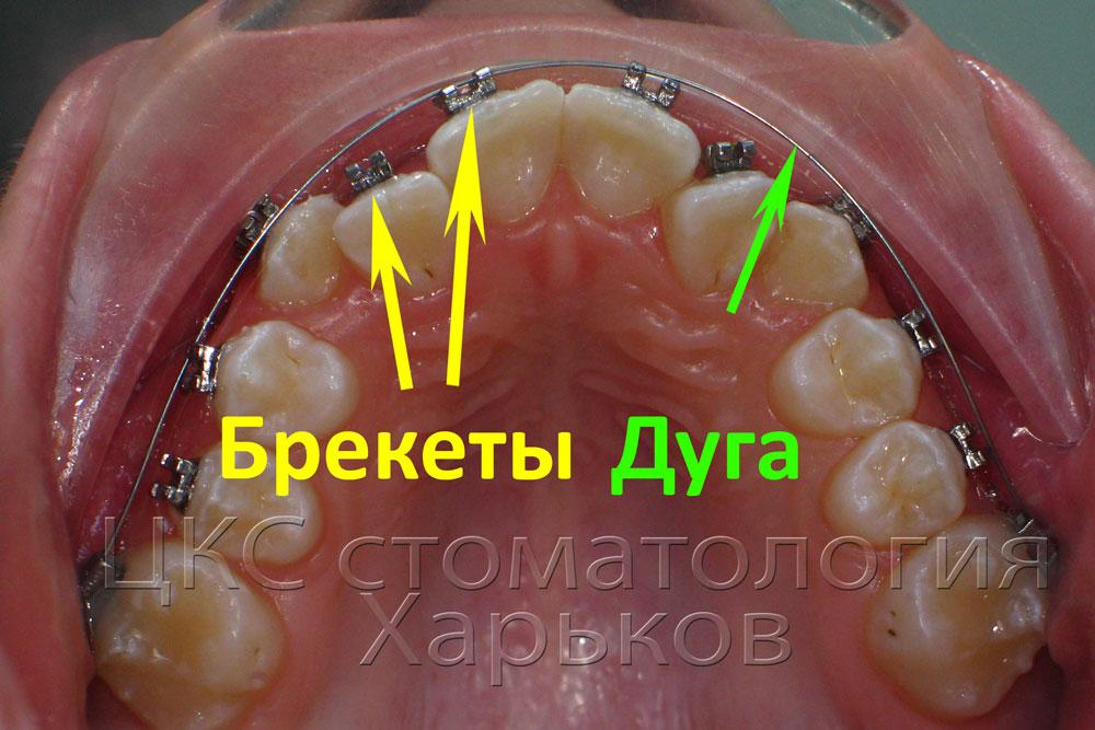 Orthodontic arc aligns the teeth in three planes