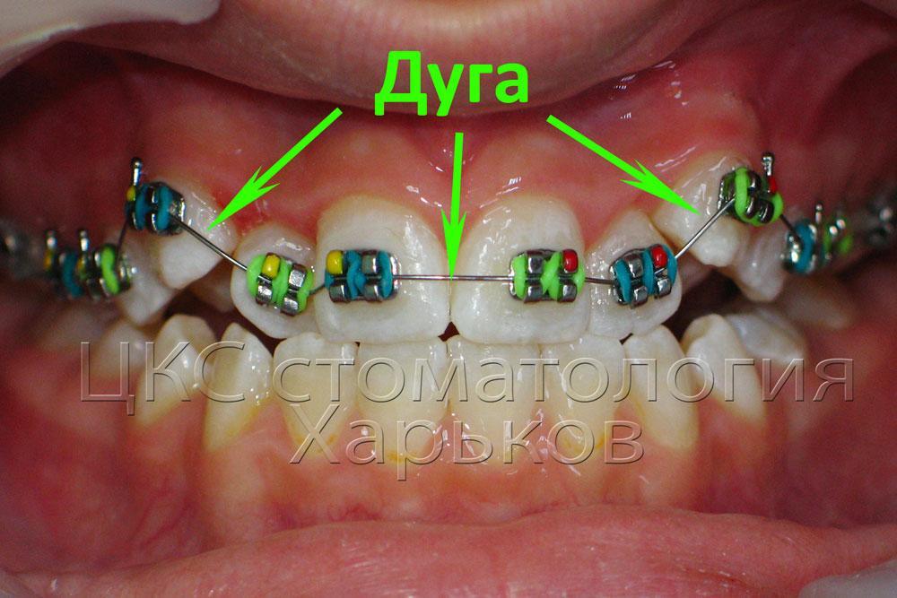 Дуга привязанная к брекетам давит на зубы