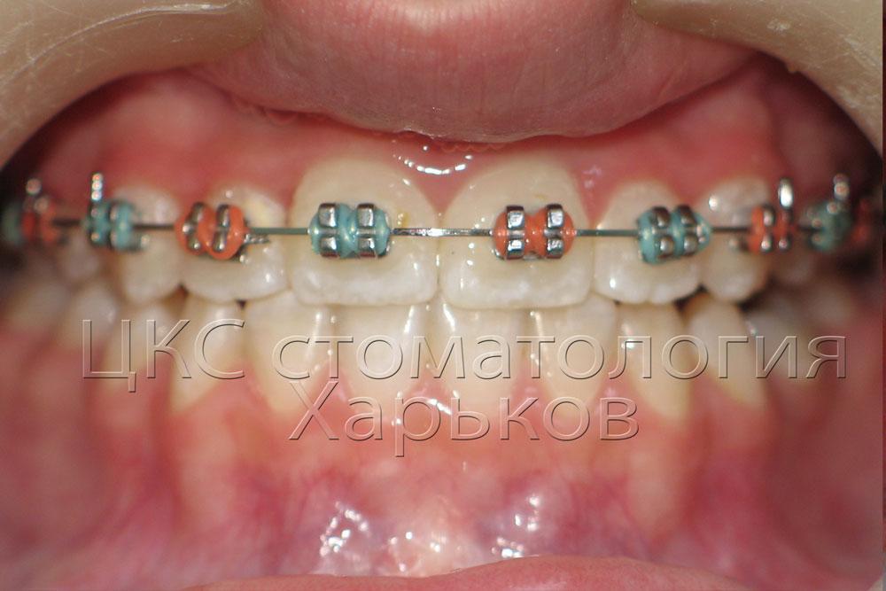 Фото зубов, которые выровняли брекеты