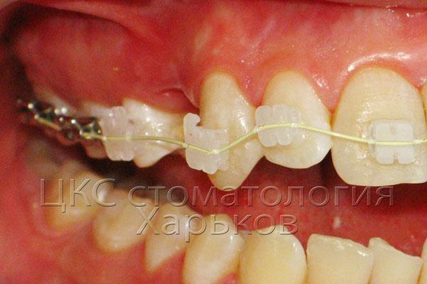 Фото этапа установки ортодонтической дуги