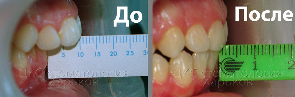 Пример лечения брекетами патологического прикуса