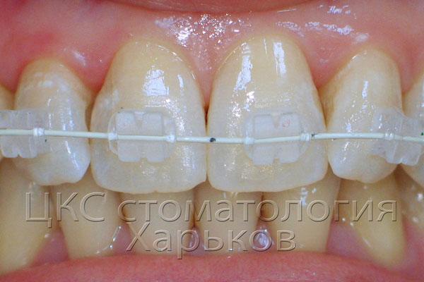 braces+ дуга+ лигатуры