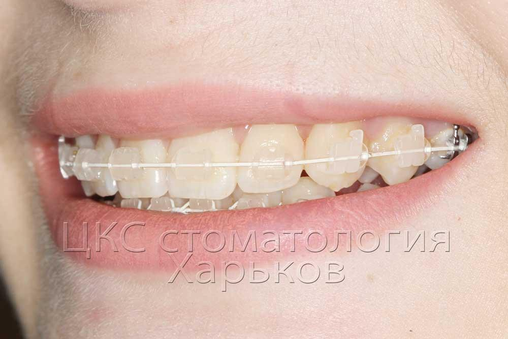 Белые брекеты, белая дуга, белые лигатуры