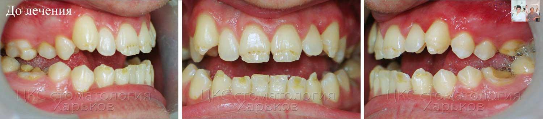 Открытый прикус до ортодонтического лечения