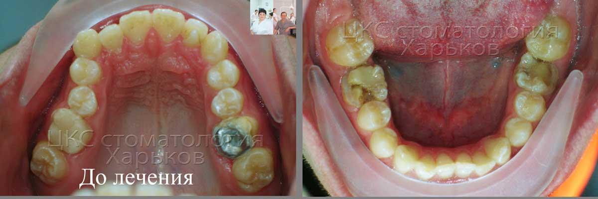 Форма зубного ряда  до лечения брекетами