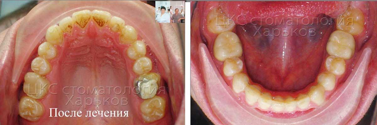 Форма зубного ряда  после лечения брекетами