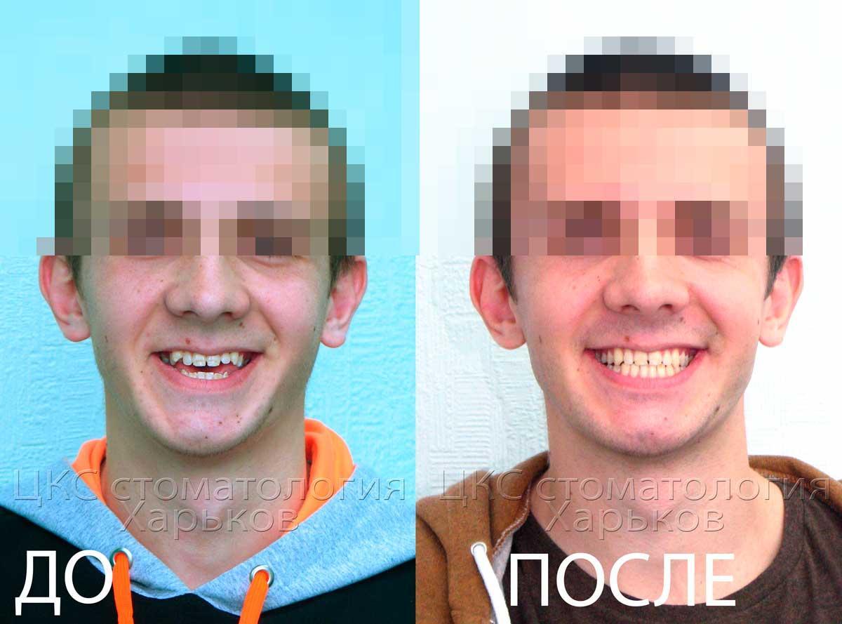 Улыбка до и после лечения открытого прикуса