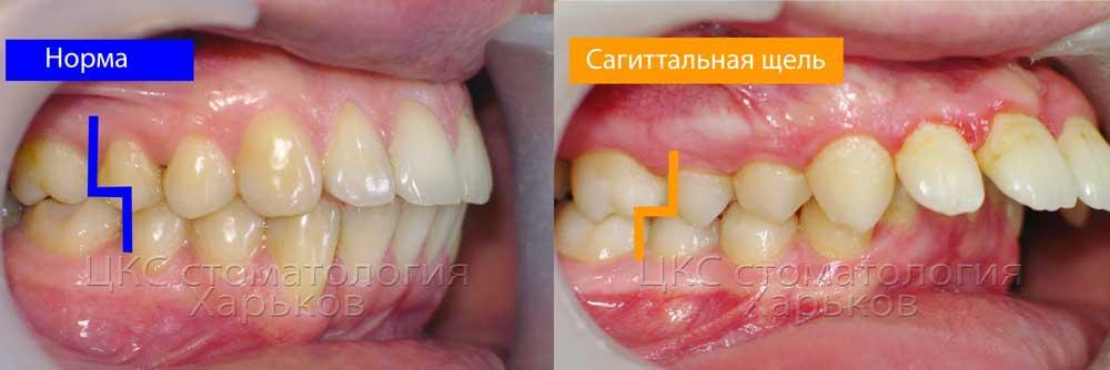 Типы смыкания жевательных зубов