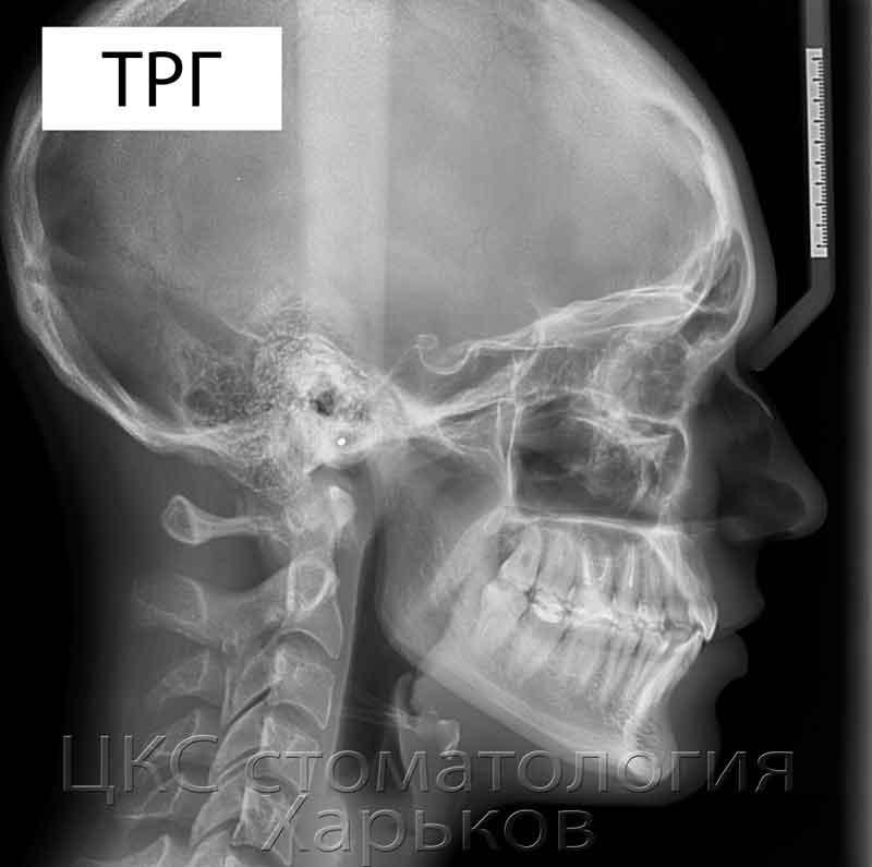 ТРГ рентгеновский снимок