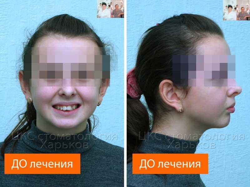 обследование строения лица до брекетов