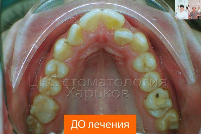 Обследование зубных рядов до установки брекет системы