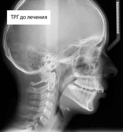 Расчет рентгеновского снимка ТРГ