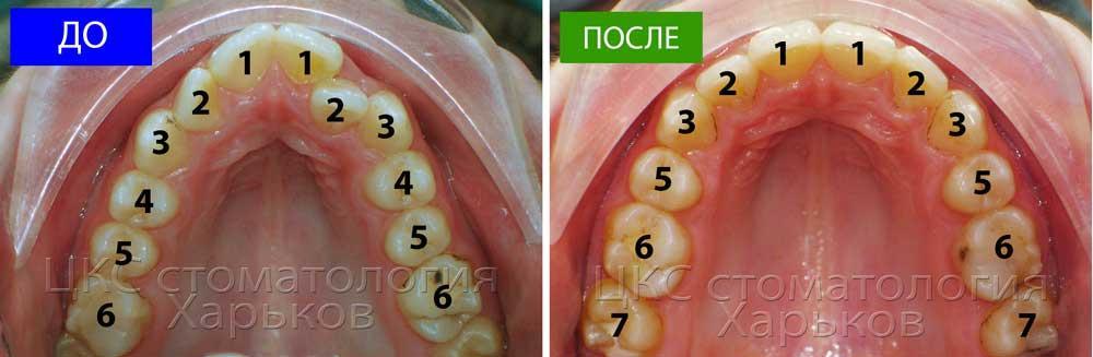 Количество  зубов ДО и ПОСЛЕ
