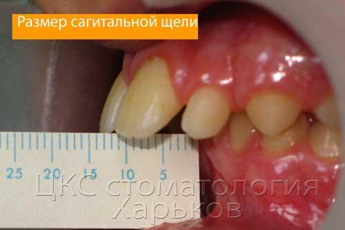 межрезцовая щель зубоальвеолярная форма