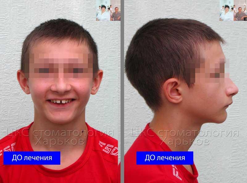 Профиль пациента с зубоальвеолярной патологией