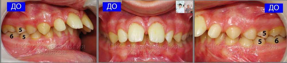 Окклюзия пациента с зубоальвеолярной патологией