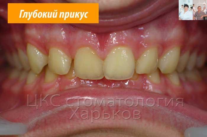 Фронтальное фото зубов до лечения