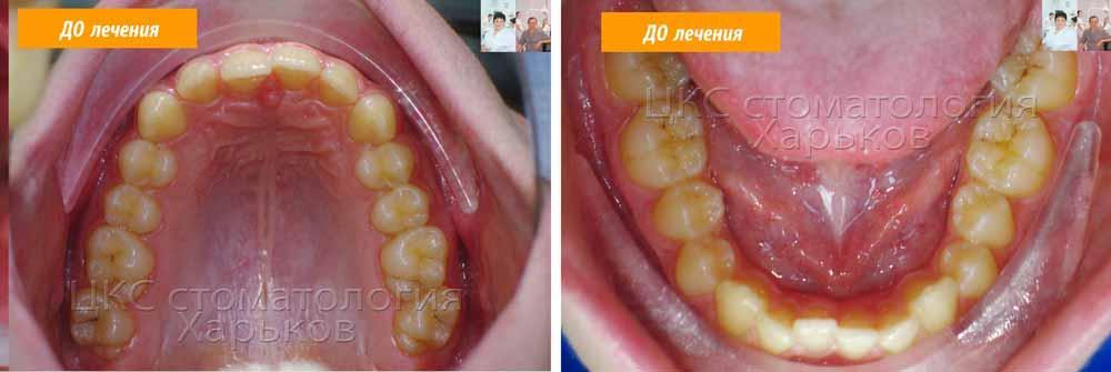 Зубной ряд верхнего и нижнего до лечения