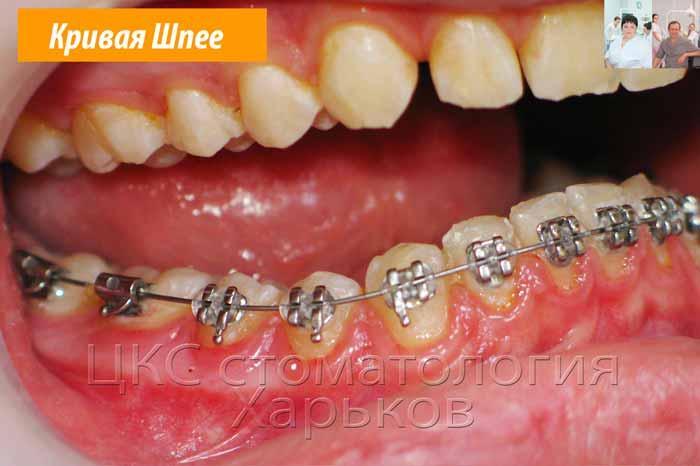 Боковое фото нижнего зубного ряда