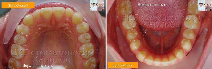 Зубные ряды ДО орто лечения