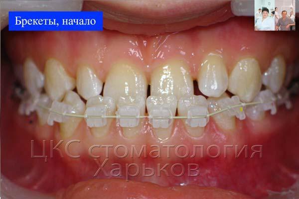 Брекеты керамические, стоматология Харьков