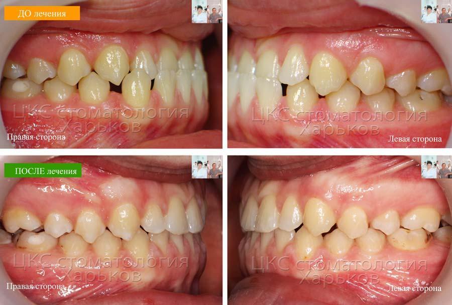Смыкание боковой группы зубов ДО и ПОСЛЕ