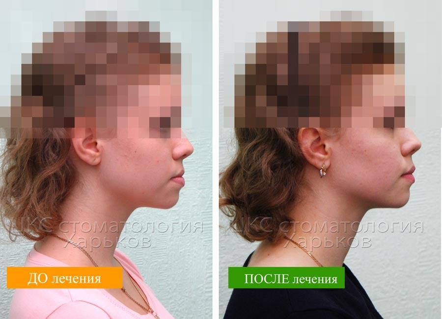 Профиль пациента до и после брекетов