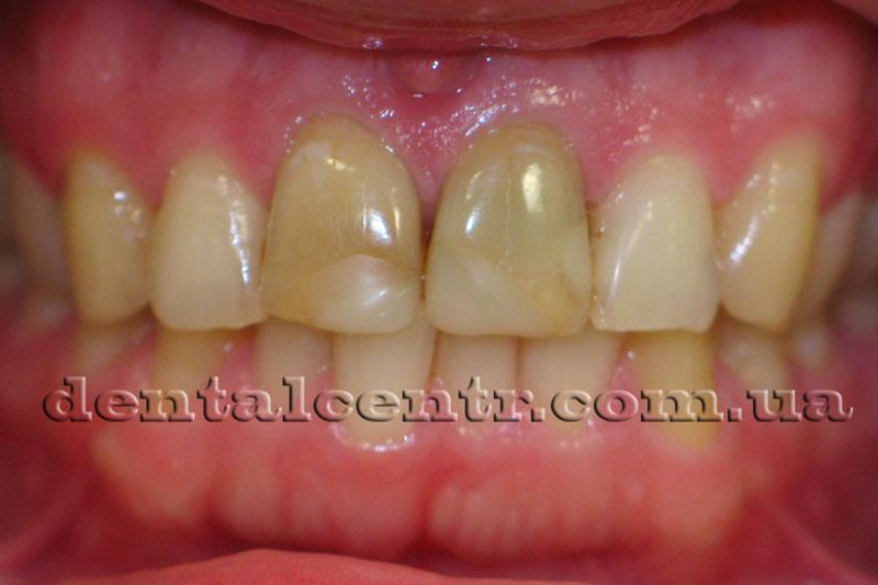 Фото верхнего зубного ряда до установки цельнокерамических коронок