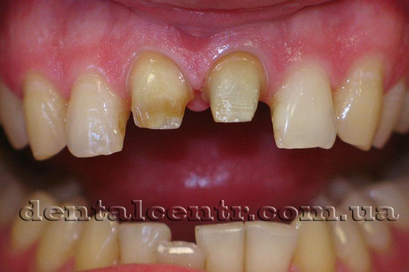 Обработка зубов для установки коронок из керамики, фото