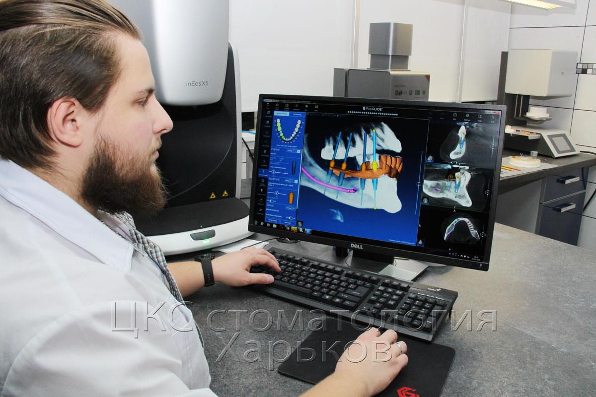 планированиеимплантологическоголечения