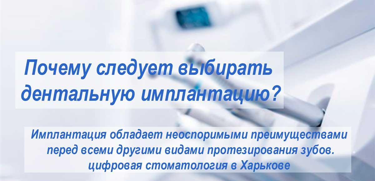 преимуществадентальнойимплантации