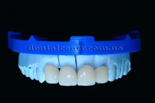 Виниры - эффект естественных зубов