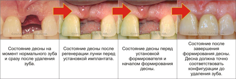 Трансформации десны фото