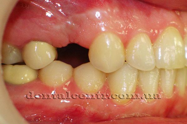 После установки зубного импланта, вид сбоку