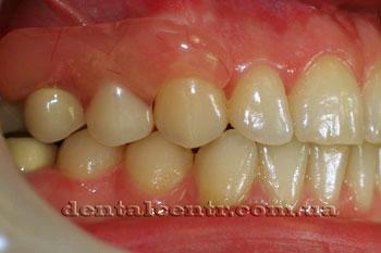 Между хирургическими этапами возможно использование временных зубов