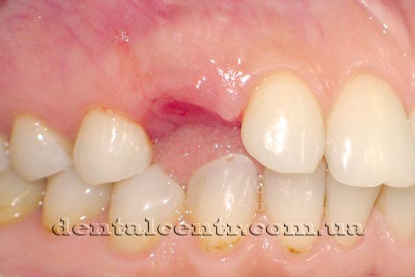 состояние десны после удаления временного зуба