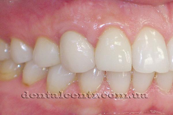 Состояние зубов после проведения двухэтаной  немедленной зубной имплантации фото