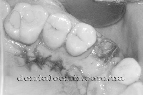 Пластика десны после установки импланта, фотография
