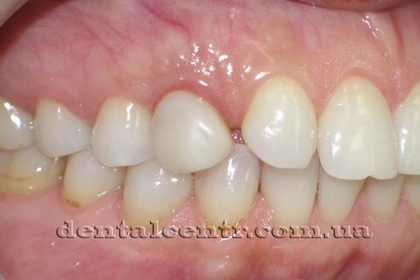 Фотография молочного зуба взрослого пациента