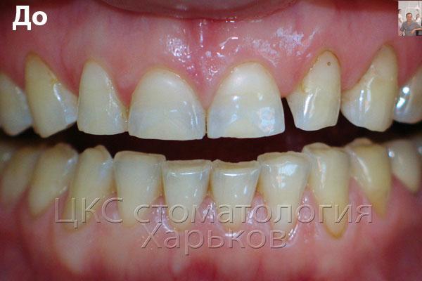 зубы с выраженными площадками стершихся зубов