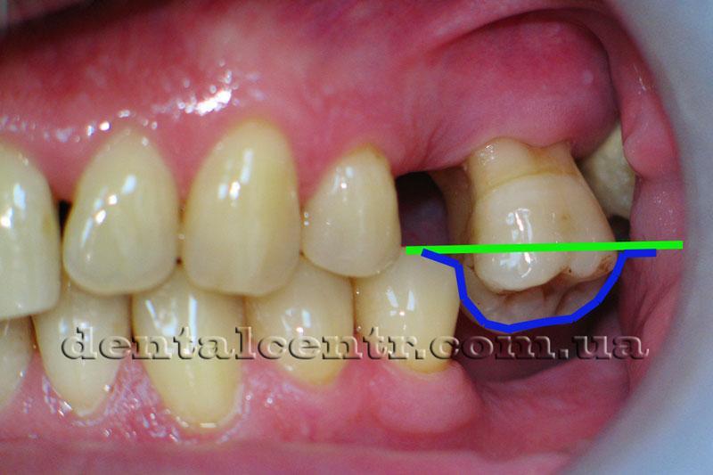 положение зуба относительно окклюзионной плоскости