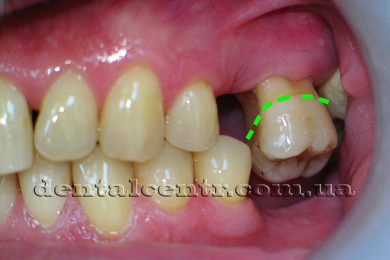 уровень десневого края для нормального зуба