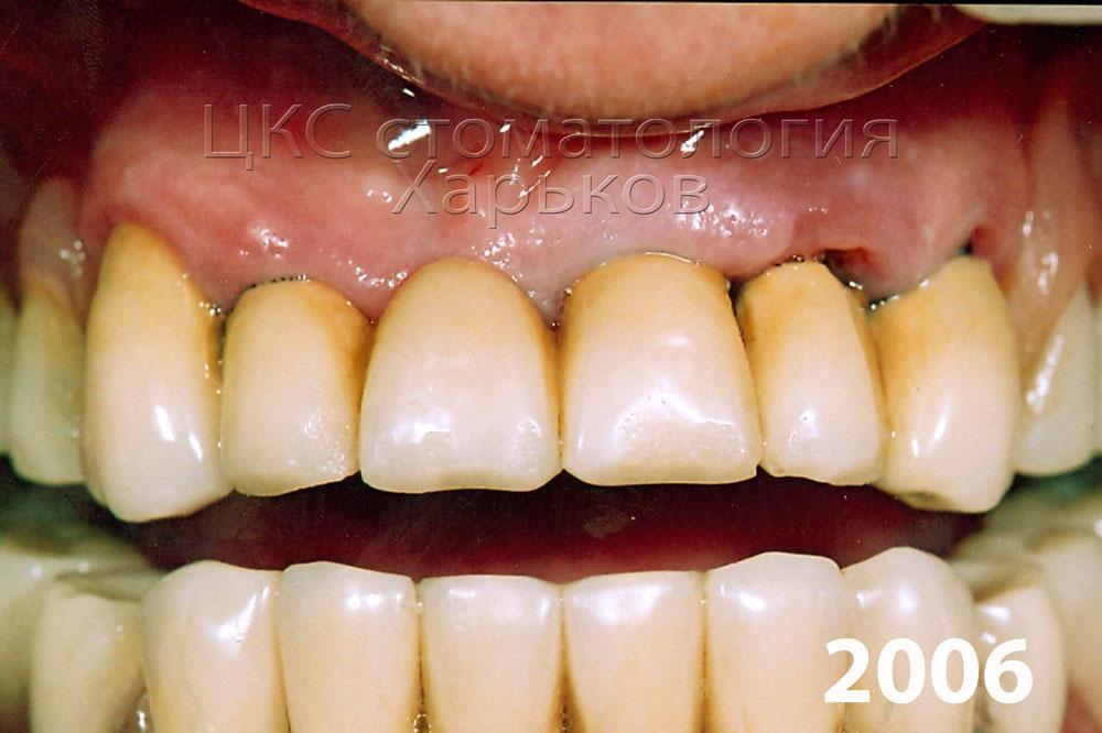 зубные протезы срок службы картинка
