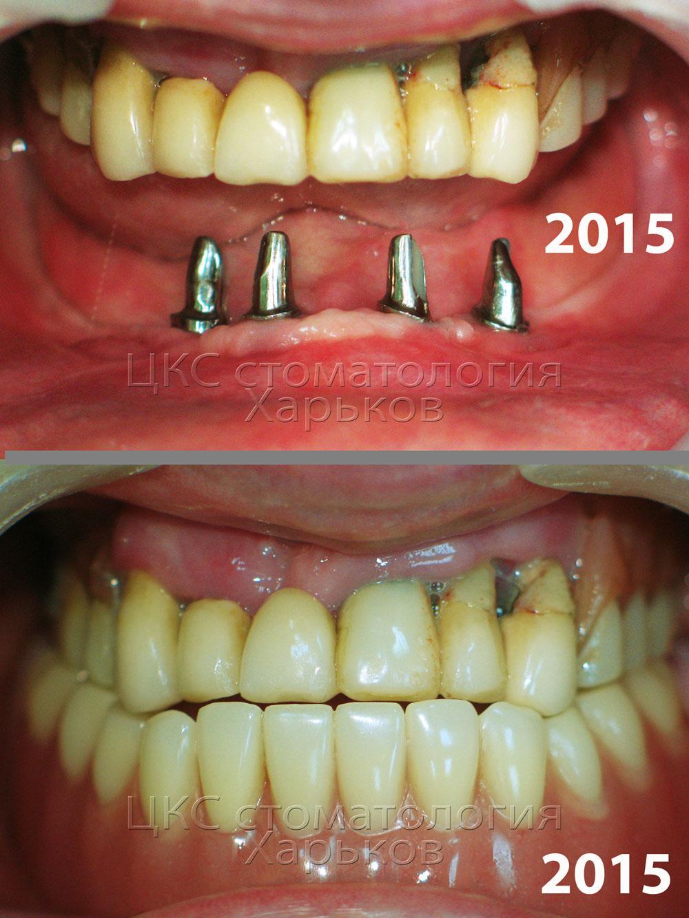 срок службы зубных коронок и протезов