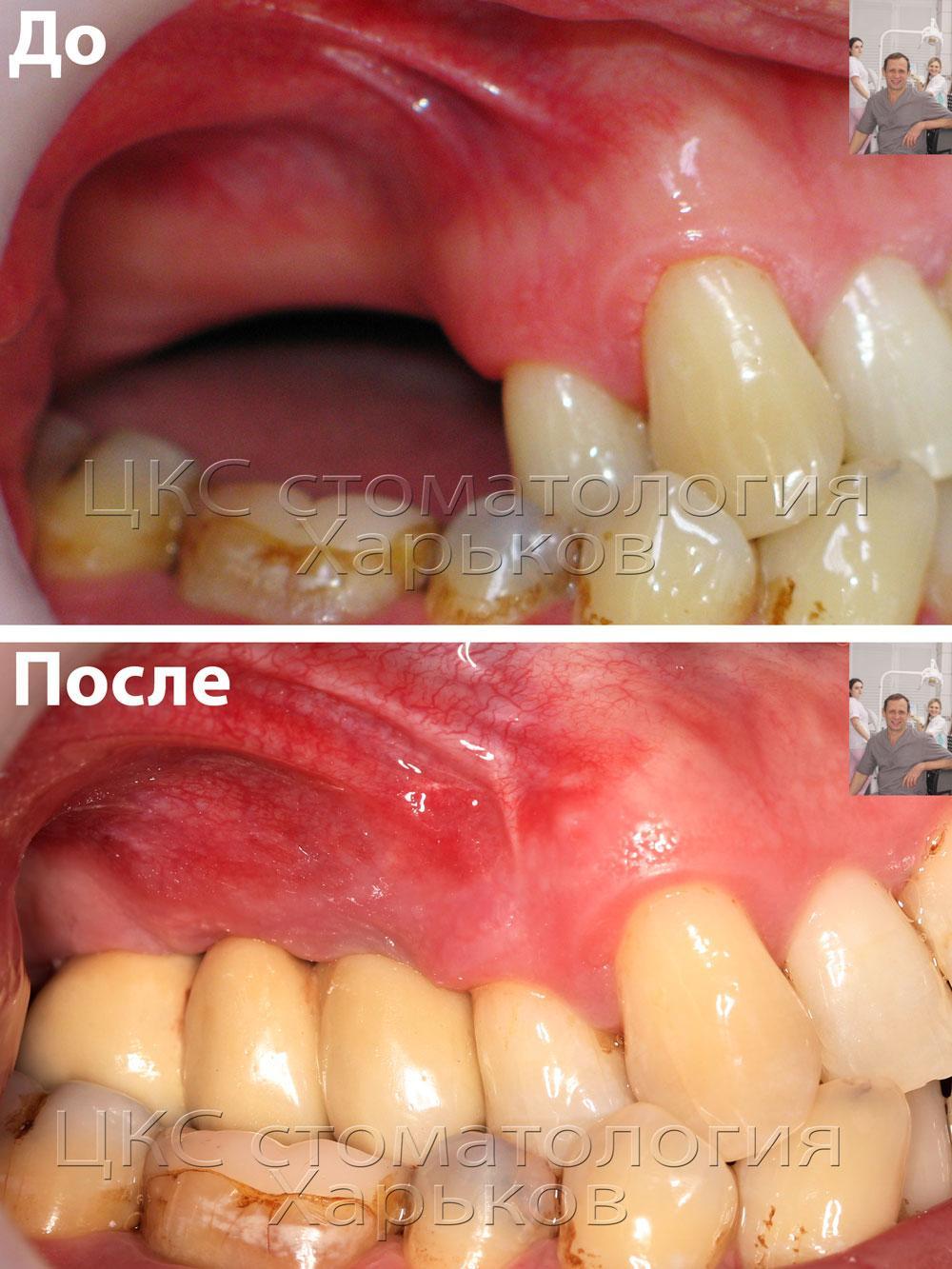 Зубная имплантация и аугментация. Фото до и после