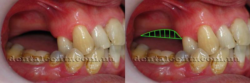 Проведение имплантации зубов в условиях атрофии кости