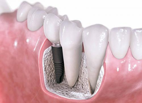 фото зубных имплантов