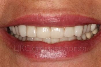 Временные зубы на время проведения зубной имплантации