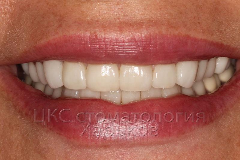 Временные зубы можно сделать сразу